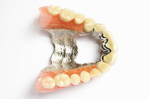 Voûte en titane | Tourigny & Thibault Denturologistes